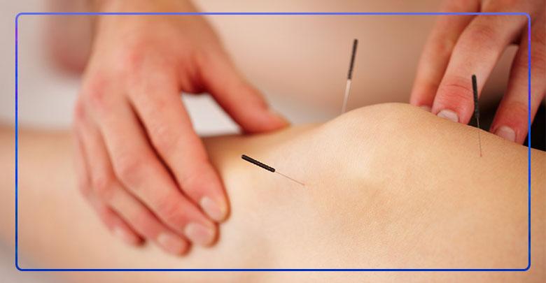 درمان سندروم پای بی قرار با طب سوزنی