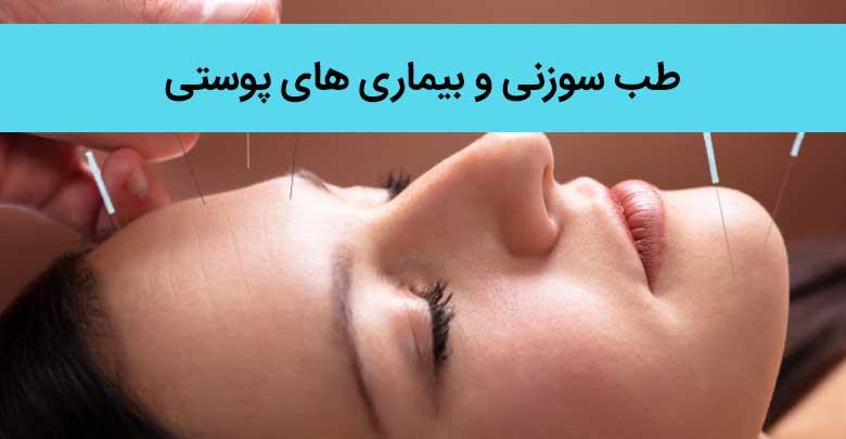 درمان بیماری های پوستی با طب سوزنی