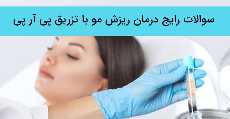 سوالات متداول درمورد درمان ریزش مو با تزریق پی آر پی