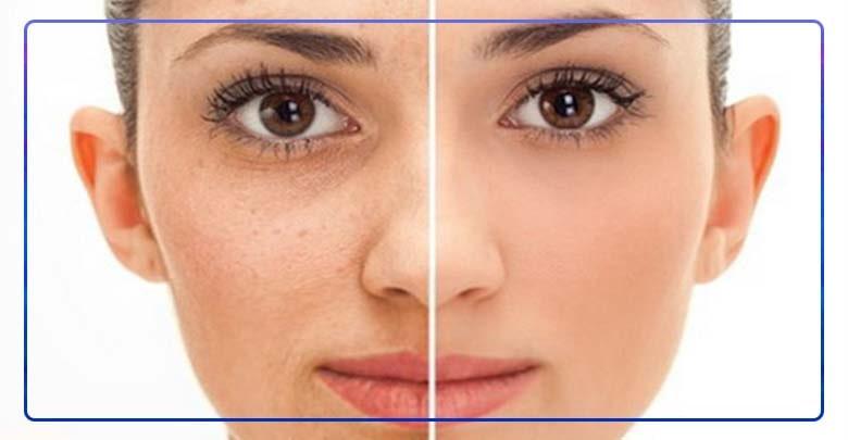 مقایسه صورت شخص در استفاده از طب سوزنی جهت درمان سیاهی و گودی دور چشم.
