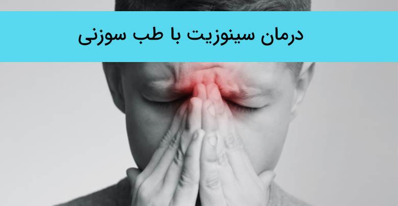 درمان سینوزیت با طب سوزنی