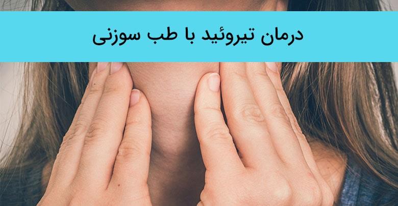 درمان تیروئید با طب سوزنی