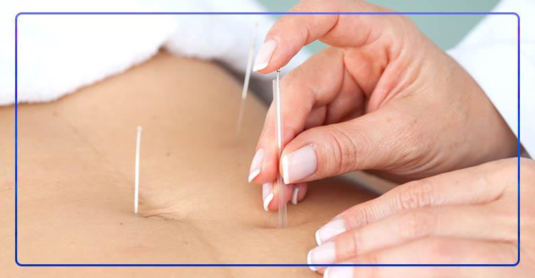 درمان سندرم تخمدان پلی کیستیک با طب سوزنی