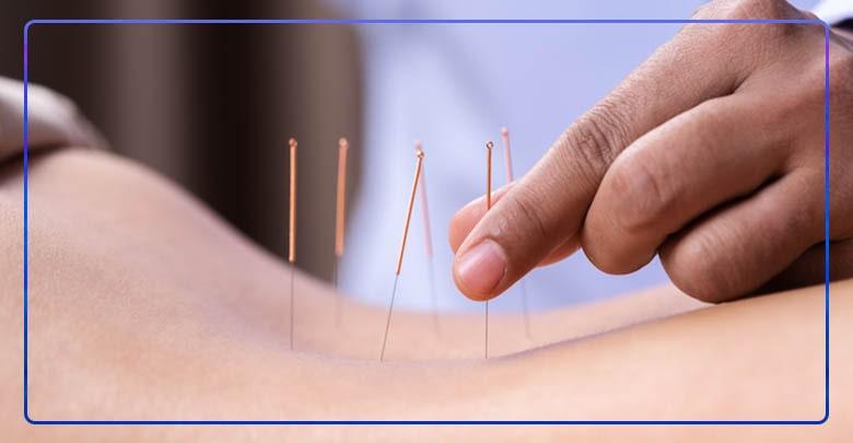 درمان سیاتیک با طب سوزنی