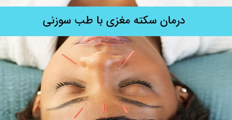 درمان سکته مغزی با طب سوزنی