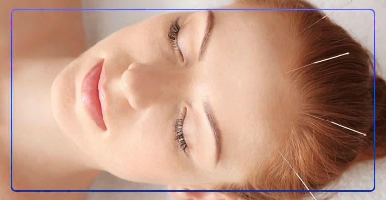 درمان سندروم خستگی مزمن با طب سوزنی
