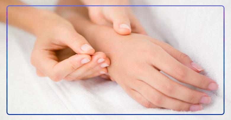 درمان سندرم تونل کارپال با طب سوزنی