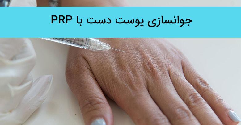 جوانسازی پوست دست با پی آر پی (PRP)