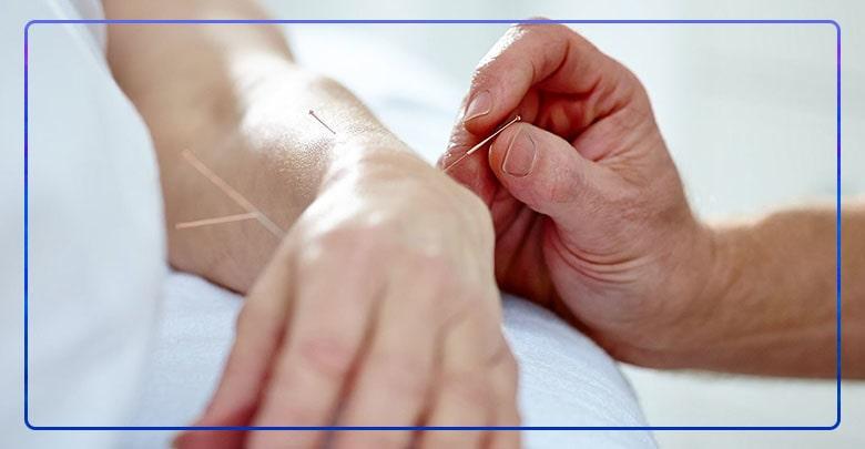 درمان بیماری های نورولوژی با طب سوزنی