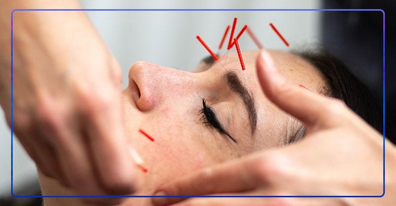 کاربرد طب سوزنی در زیبایی و جوانسازی و بیماریهای پوستی