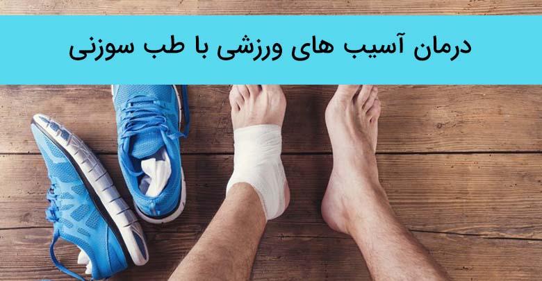 درمان آسیب های ورزشی با طب سوزنی