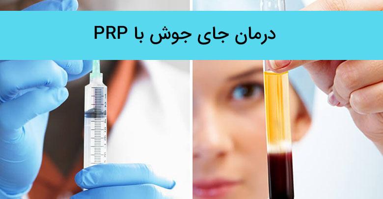 درمان جای جوش و آکنه با پی آر پی (PRP)
