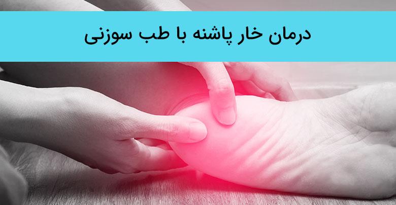 درمان خار پاشنه با طب سوزنی