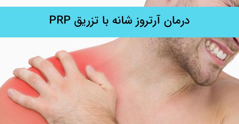 درمان آرتروز شانه با پی آر پی (PRP)