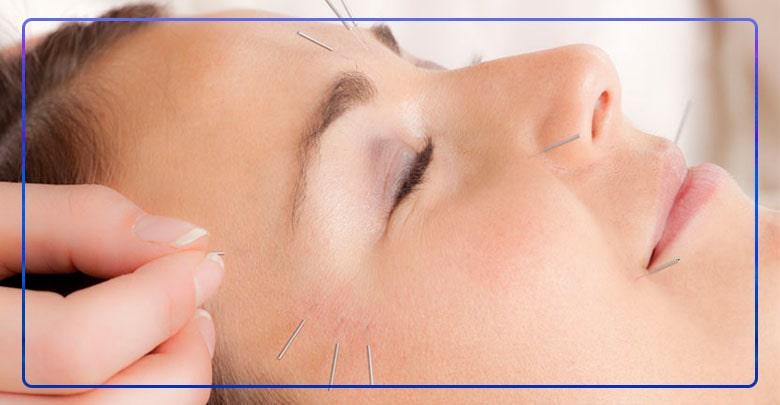 درمان فلج بلز با طب سوزنی