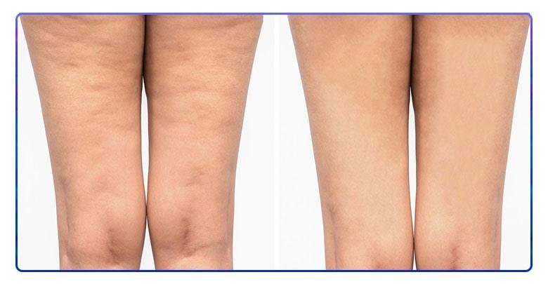 درمان سلولیت با طب سوزنی